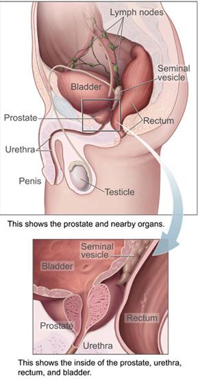 acute prostatitis anatomy