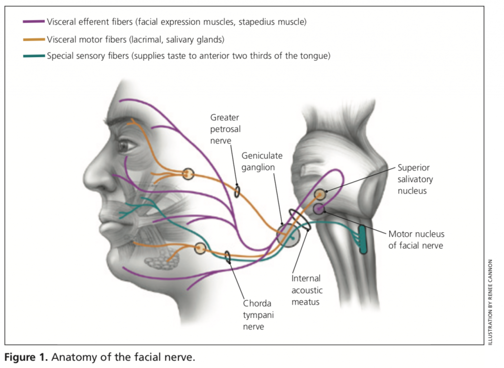 Bell\'s Palsy (Facial Nerve Paralysis) - Physician Assistant Boards