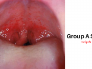 Group A Strep Infection